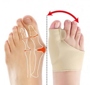 1 Pair Bunion Correction Orthopedic